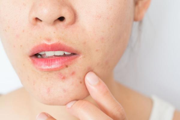 Como combatir los síntomas del acné hormonal